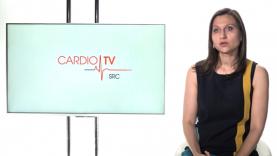 Ce se intampla in timpul unei ecocardiografii