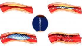 coronografia-stent