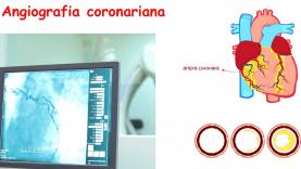 tomografia computerizata3